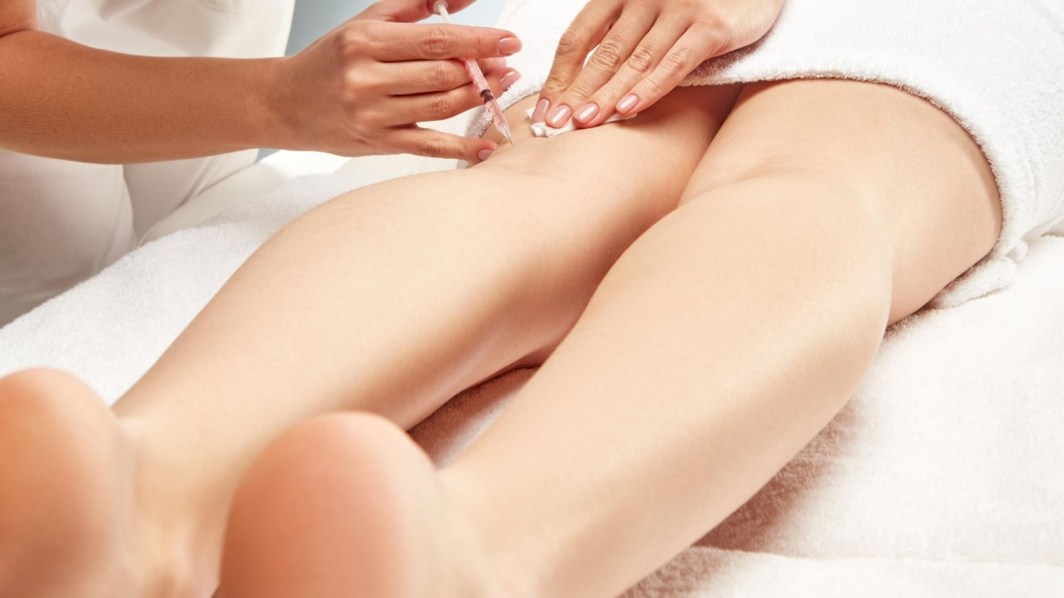 Sclerotherapy/Vein Treatment